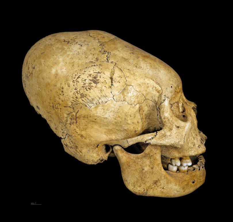 Proto Nazca deformed skull, c 200–100 BC.